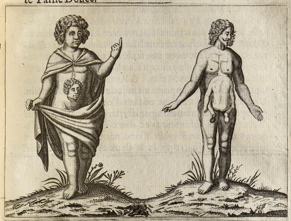 palfyn-jean-description-anatomique-des-parties-de-la-femme-qui-servent-a-la-generation-avec-un-traite-des-monstres-de-leur-causes-de-leur-nature-de-leur-differences-et-une-description-anatomique-de-la-disposition-surprenante-de--152
